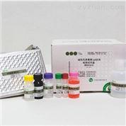 破伤风类毒素IgG抗体检测试剂盒酶联免疫法
