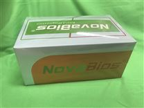 疾控系統采用肝吸蟲igg/igm快速檢測卡